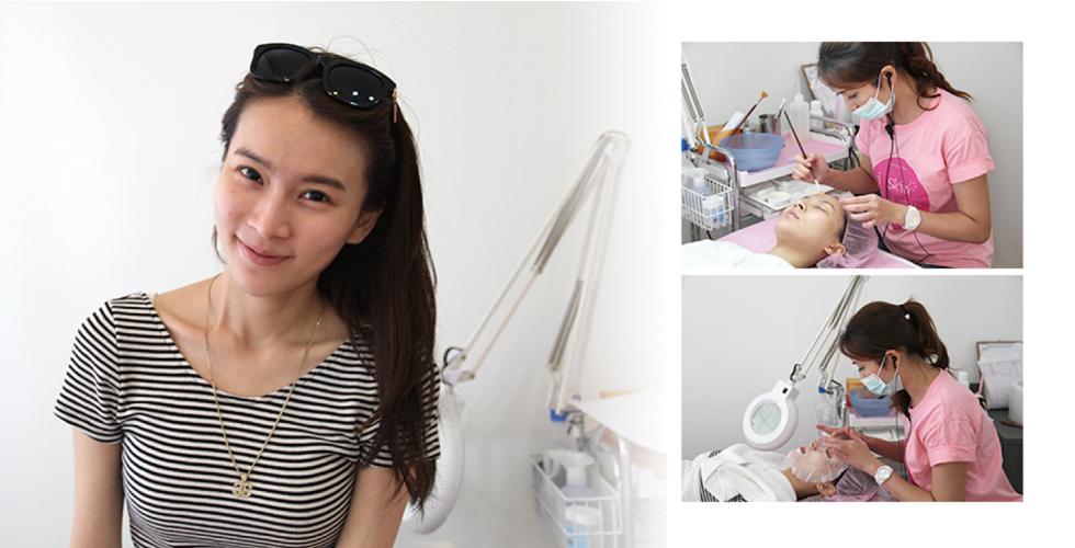 讓盧靜怡院長判斷好適合的酸類及濃度,會由美療師進行杏仁酸換膚的療程