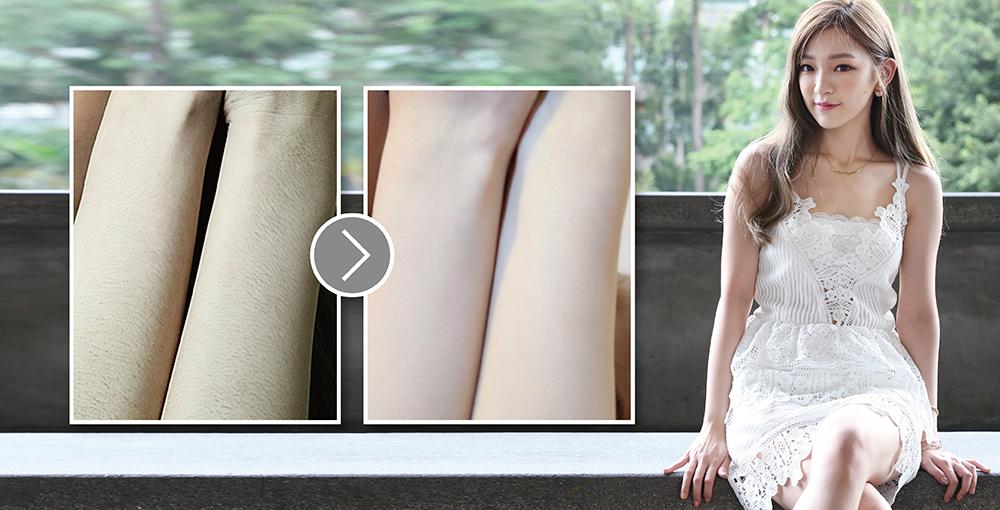 有了光纖雷射,不用苦哈哈的「刮毛」或「拔毛」了,看看前後對比照,皮膚光澤度也提升許多。