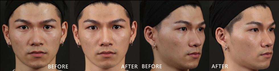 大分子玻尿酸讓我的鼻子正面及側面看起來變挺;法令也變淡了、臉型的弧度變得更好看!