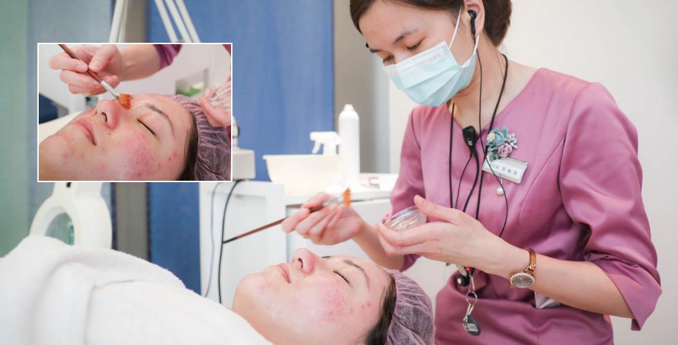 美容師仔細的幫我上杏仁酸,也清楚的說明療程;真的讓我好放心