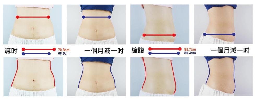 盧靜怡院長的腰腹最在做完冷凍治療後一個月,改善近一吋,原來有那麼多脂肪在盧醫師肚子裡啊……噓!