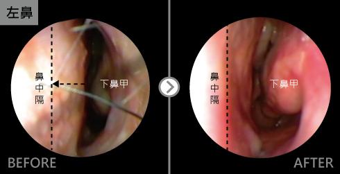 鼻中隔向左側彎曲幾乎塞住左鼻孔,經鼻中隔全方位矯正手術後,鼻中隔變直可直接看到後鼻孔。