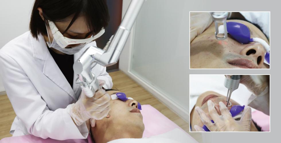 陳清筠醫師,施打得很仔細,我沒注意到的細節,他也會在治療時跟我說,這邊幫你加強一下喔,這邊斑點比較多之類
