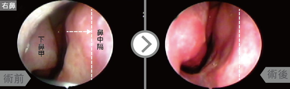 術前的鼻中隔在中段向右邊彎曲併鼻甲肥厚,在經鼻中隔彎曲矯正及下鼻甲雷射成型手術後鼻中隔變直,鼻道空間增加許多。