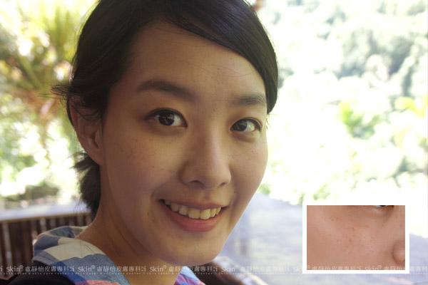 術前圖:雀斑讓C小姐看起來老了十歲。