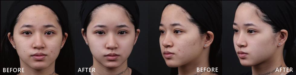 打完4D皮秒雷射後發現原本的痘疤淡了,發炎痘痘的情況也改善很多,臉變透亮,感覺有滿滿的膠原蛋白。