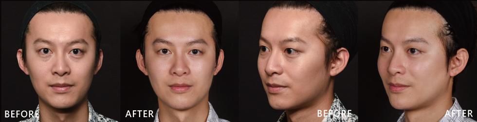 治療後,原本的淚溝問題改善後,眼睛也炯炯有神,比較沒以前那樣厭世了, 而微調後的兩頰,對稱效果之下,就顯得比較不那麼礙眼,而且整體對稱後也顯得比較年輕。