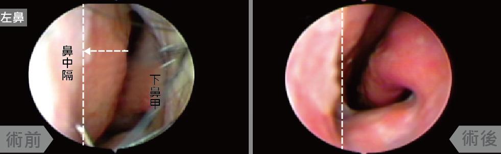 前端鼻中隔向左彎曲幾乎靠近下鼻甲,經鼻道鼻中隔成型手術後,鼻道空間改善許多,鼻塞也解決了。