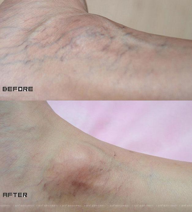 本院藍爵雷射治療血管青筋的案例。