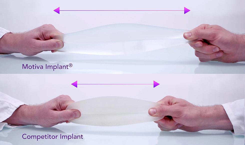 Motiva的材質可拉伸4.5倍,手術切口極小,美觀好照顧
