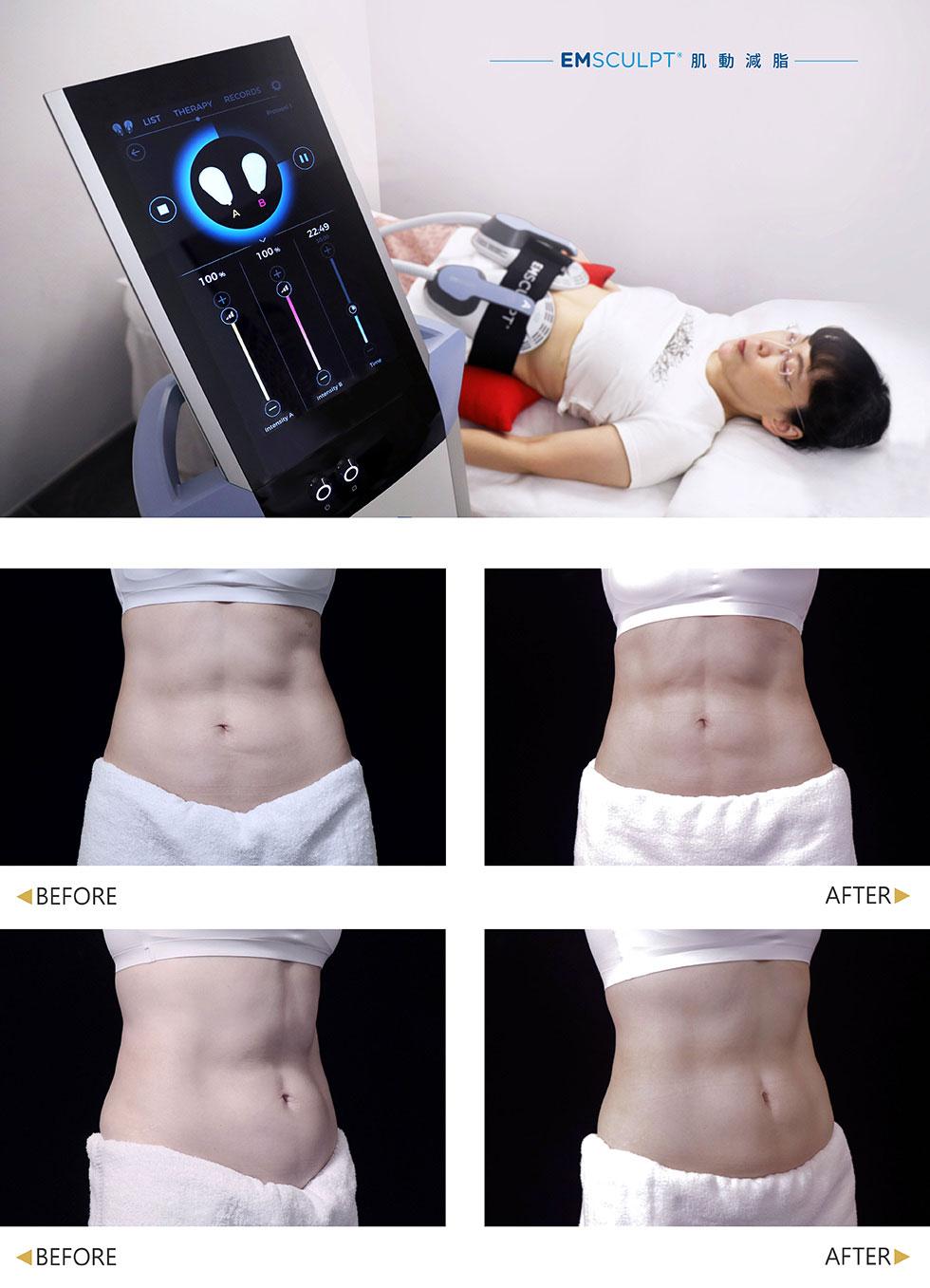 盧靜怡院長除平時勤於運動再經六次肌動減脂療程後,腹部線條更加明顯清晰,每次療程都明顯感受到肌肉增長及線條變化