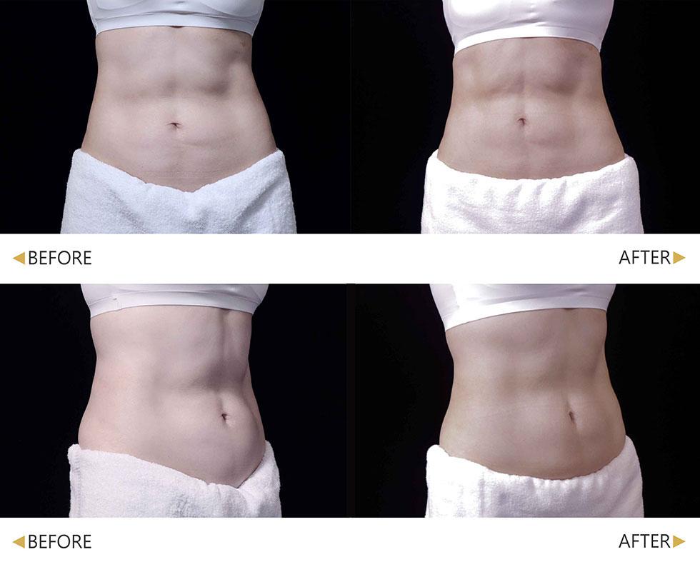肌動減脂療程後,腹部線條更加明顯清晰,每次療程都明顯感受到肌肉增長及線條變化。(實際效果因人而異)