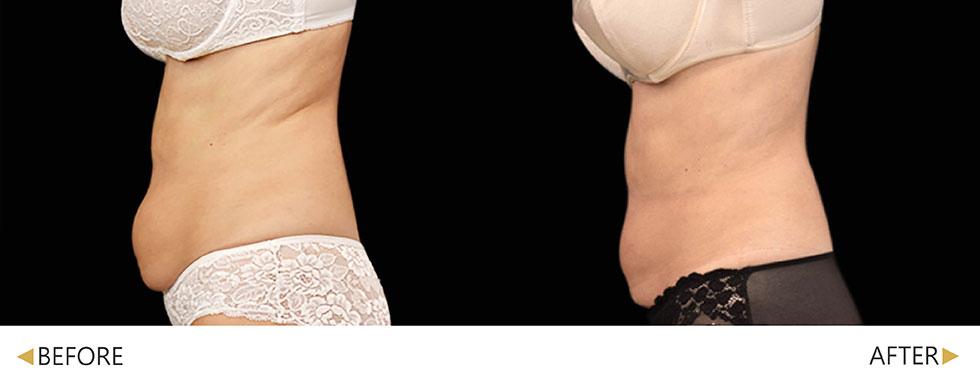 EMSCULPT/肌動減脂/增肌減脂治療 4週。實際效果因人而異,建議先經由專業醫師諮詢。