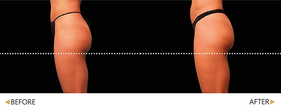 EMSCULPT/肌動減脂/增肌減脂治療 。實際效果因人而異,先經由專業醫師諮詢。