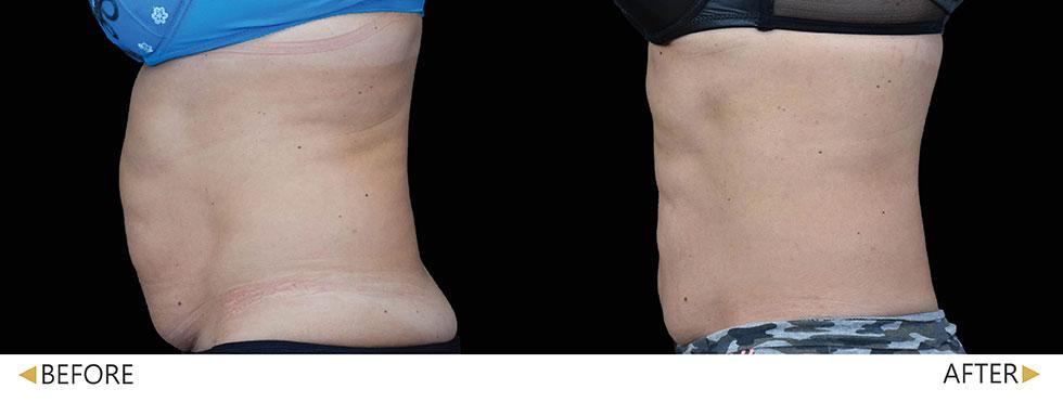 EMSCULPT/肌動減脂/增肌減脂治療 8週。實際效果因人而異,建議先經由專業醫師諮詢。