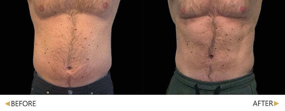 EMSCULP/肌動減脂/增肌減脂腹部4次治療。實際效果因人而異,建議先經由專業醫師諮詢。