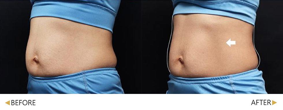 EMSCULPT/肌動減脂/增肌減脂腹部治療 2周治療4次。實際效果因人而異,建議先經由專業醫師諮詢。