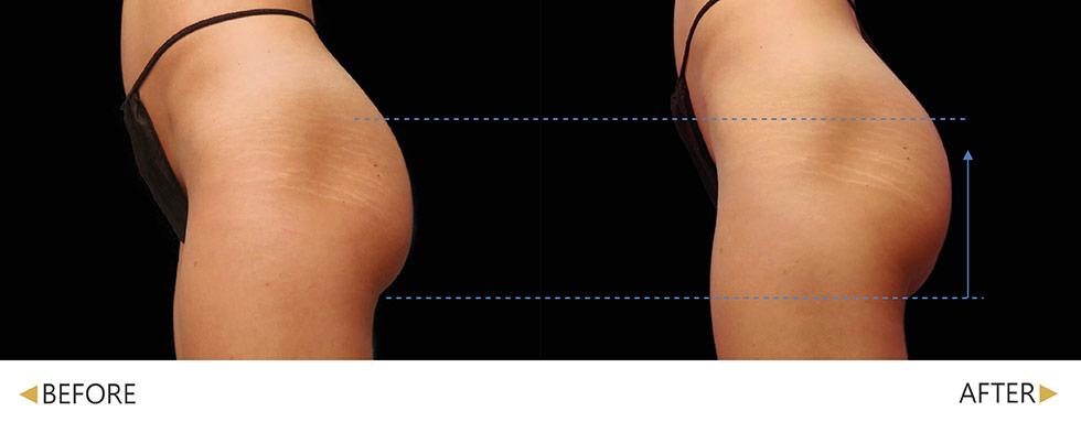 EMSCULPT/肌動減脂/增肌減脂臀部治療 4次。實際效果因人而異,建議先經由專業醫師諮詢。