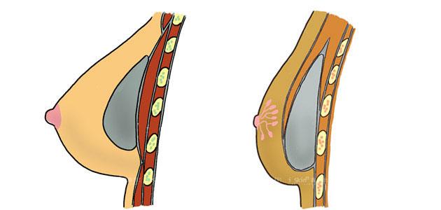 果凍矽膠隆乳手術是將矽膠模型植入乳房內部,擺放的位置可分為乳腺下方(左圖),以及胸大肌下(右圖)。