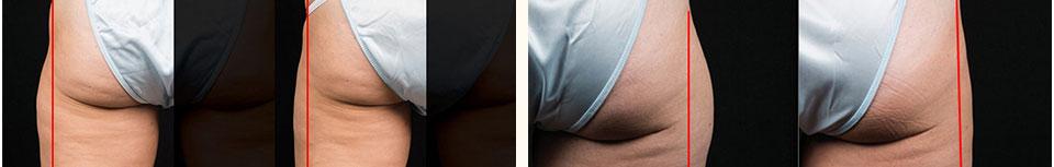 依照每個人身體代謝凋亡脂肪細胞的速度出現成效,而在術後的1~3個月則會越來越明顯