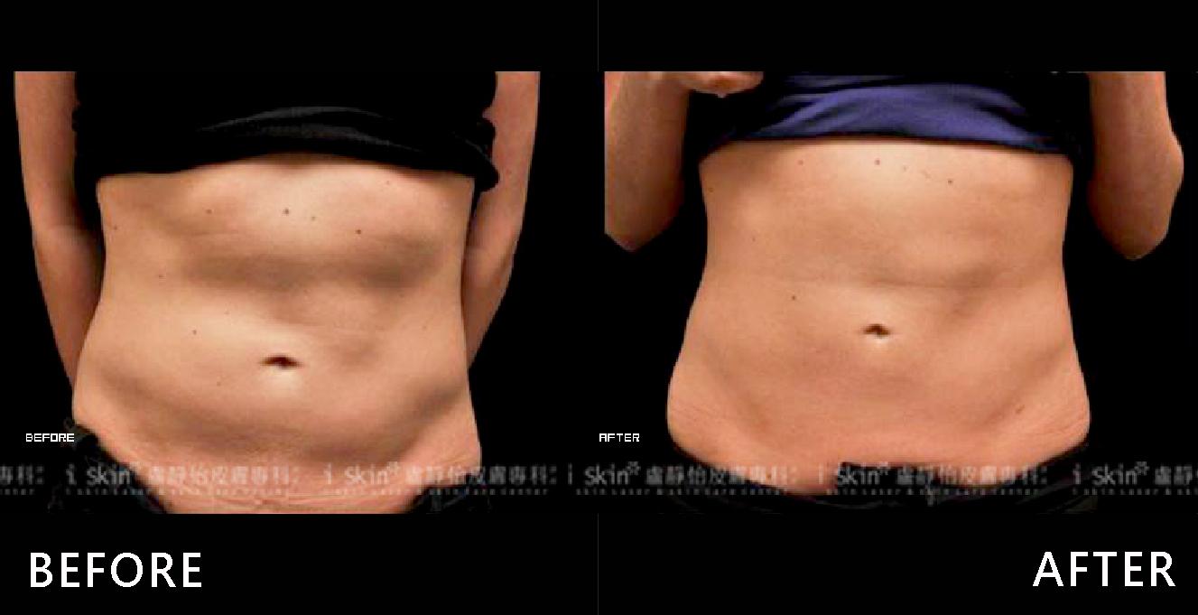 腹部脂肪分布不均造成凹凸選擇冷凍減脂局部雕塑,現在有腰身,腹部光滑平坦,自信加分。(效果因個案而異)