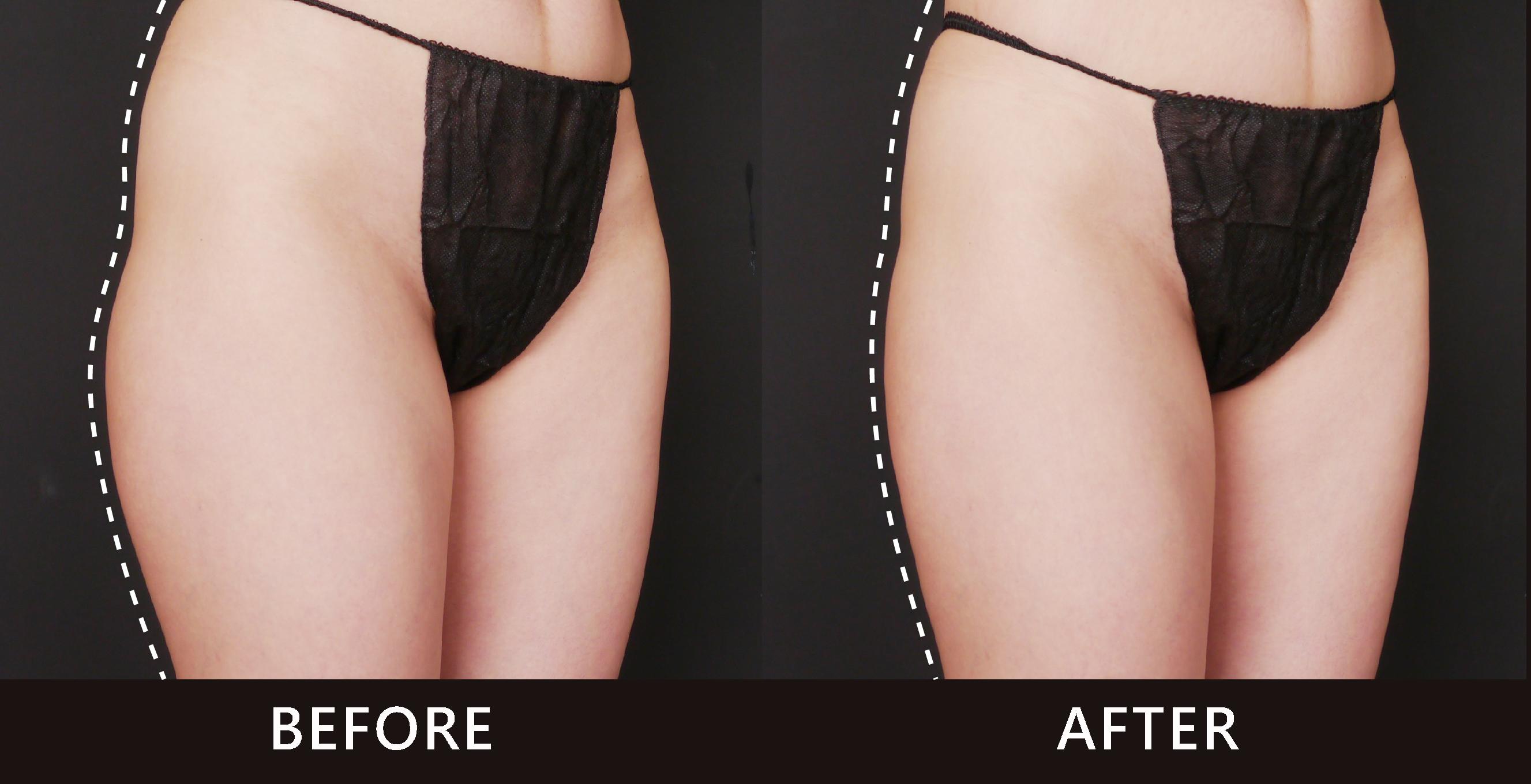 冷凍減脂治療後,大腿外側曲線弧度變順了。(效果因個案而異)