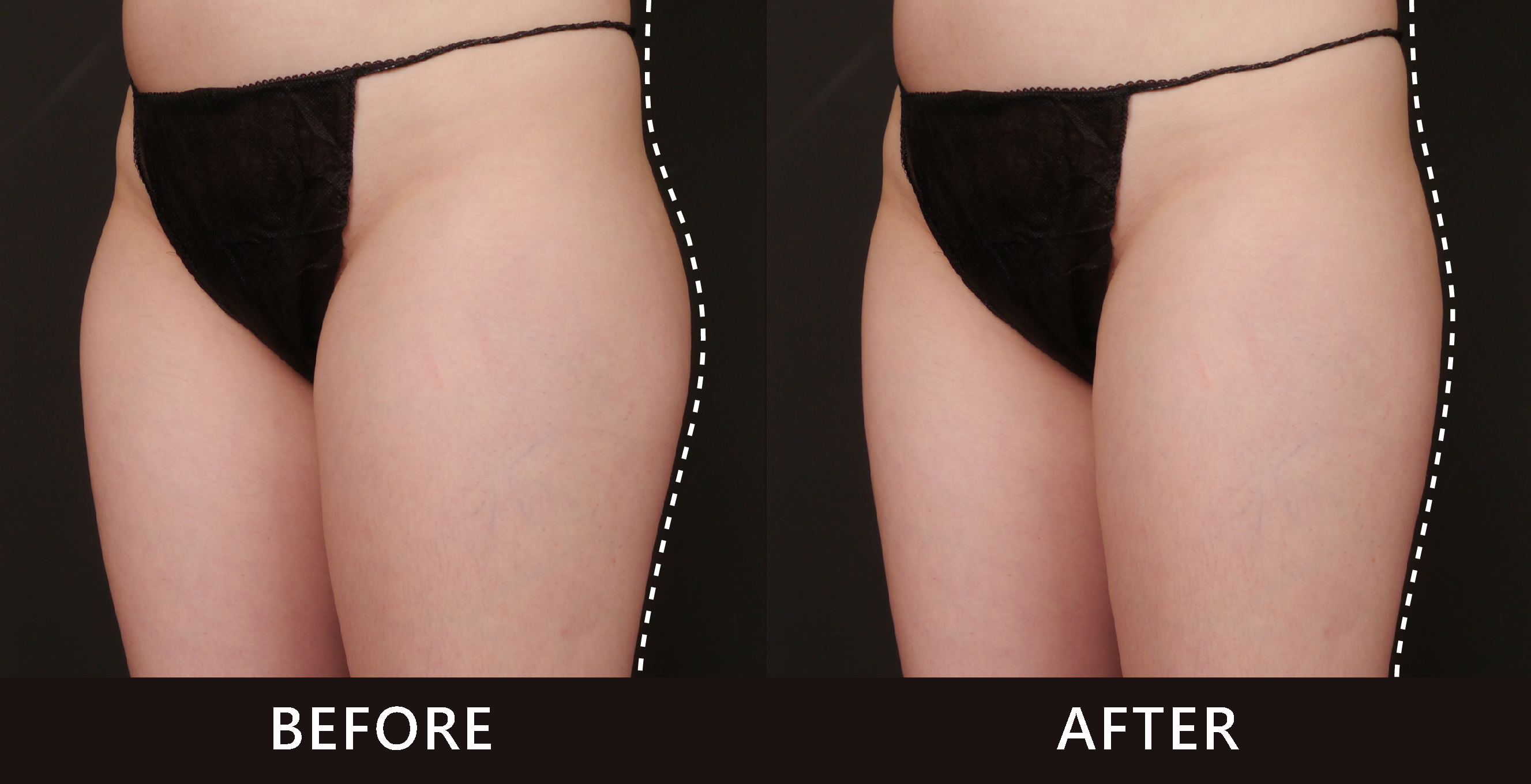 肉感的大腿外側脂肪在冷凍減脂的治療下曲線不再粗壯臃腫,擁有了夢想中的蜜腿。(效果因個案而異)