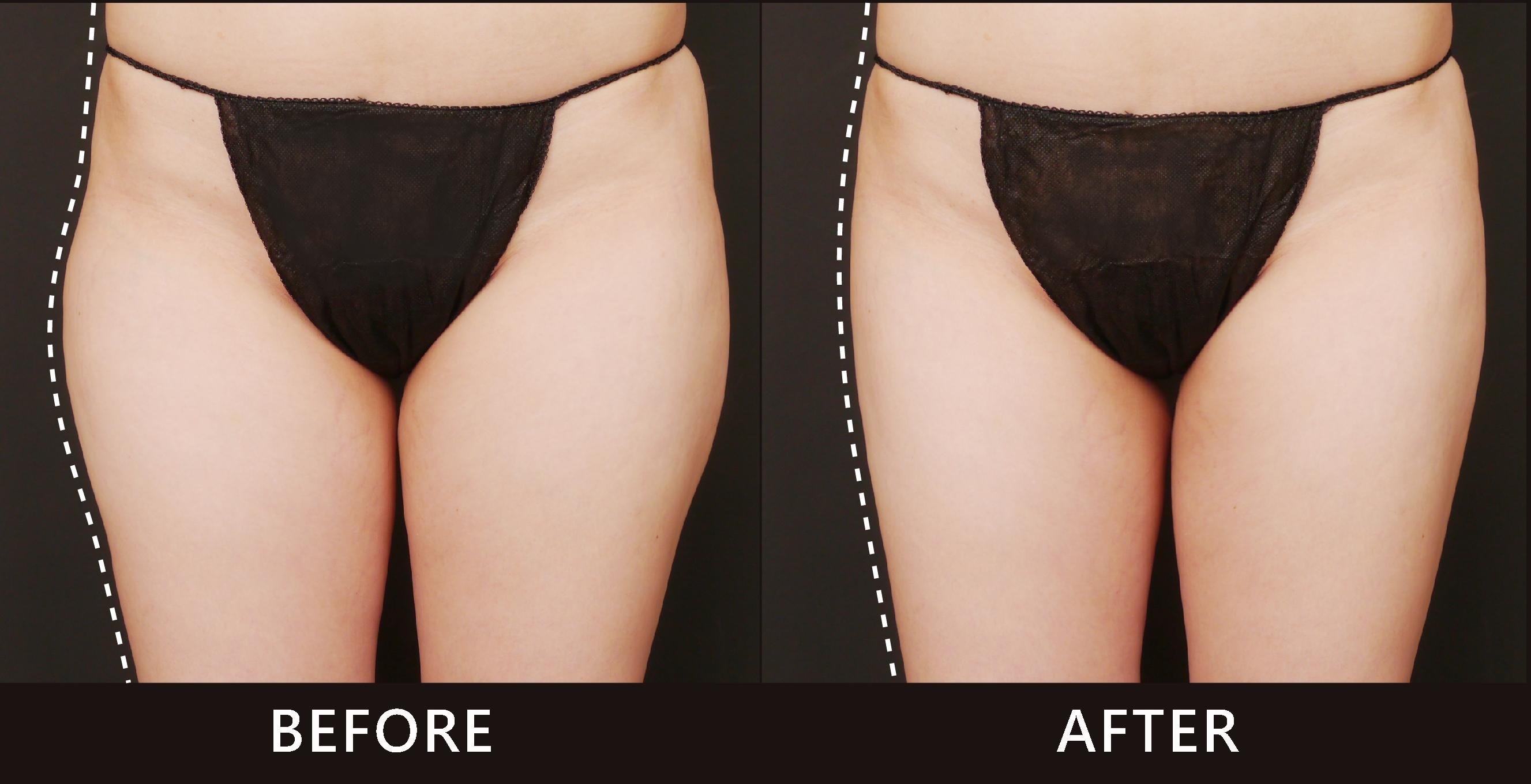 大腿外側因脂肪堆積造成大屁股的印象,是亞洲女性體型的常見現象。因此選擇酷爾塑平冷凍減脂療程雕塑大腿外側曲線,線條變得筆直。(效果因個案而異)