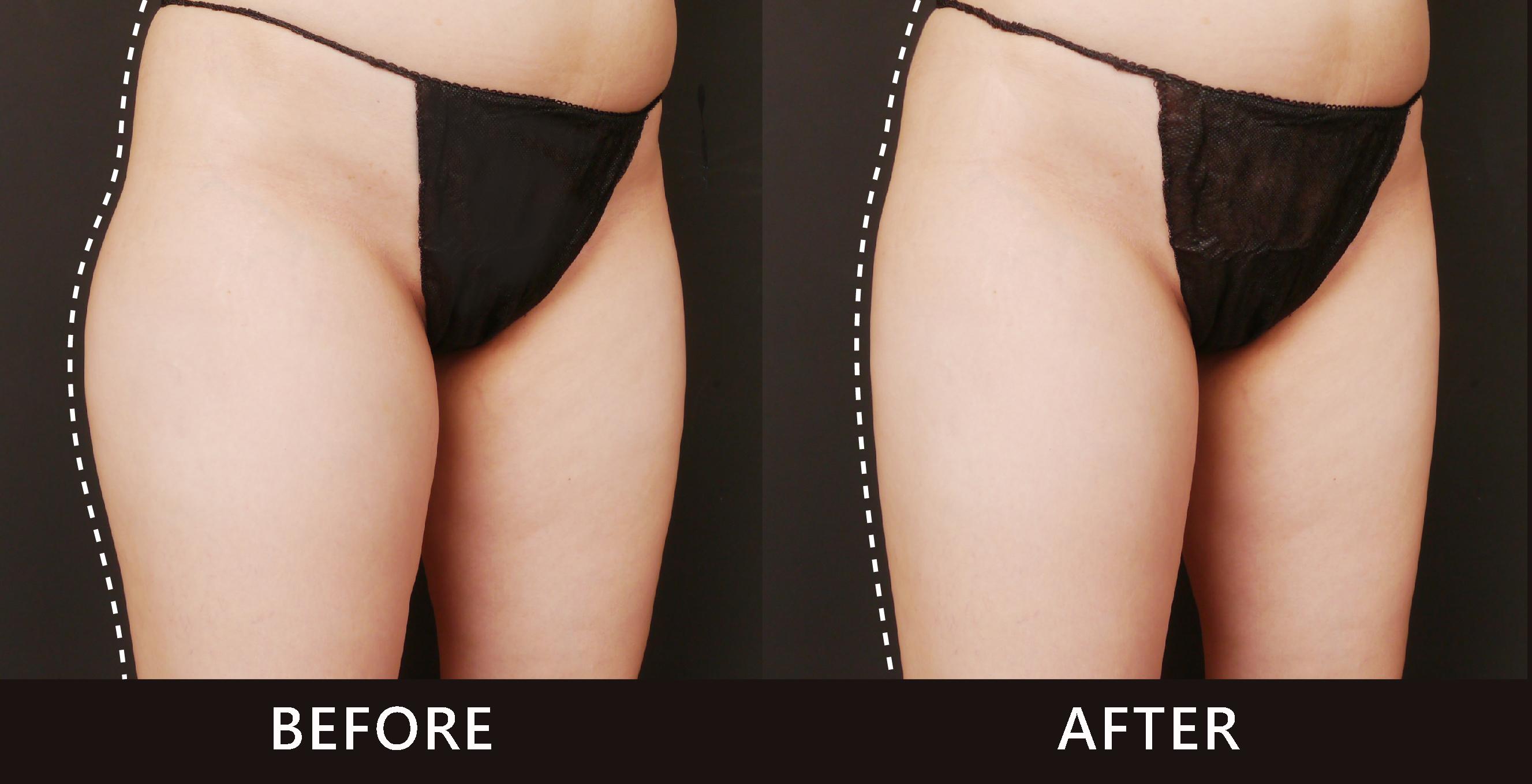大腿外側脂肪堆積不見了,曲線變得直且順。(效果因個案而異)
