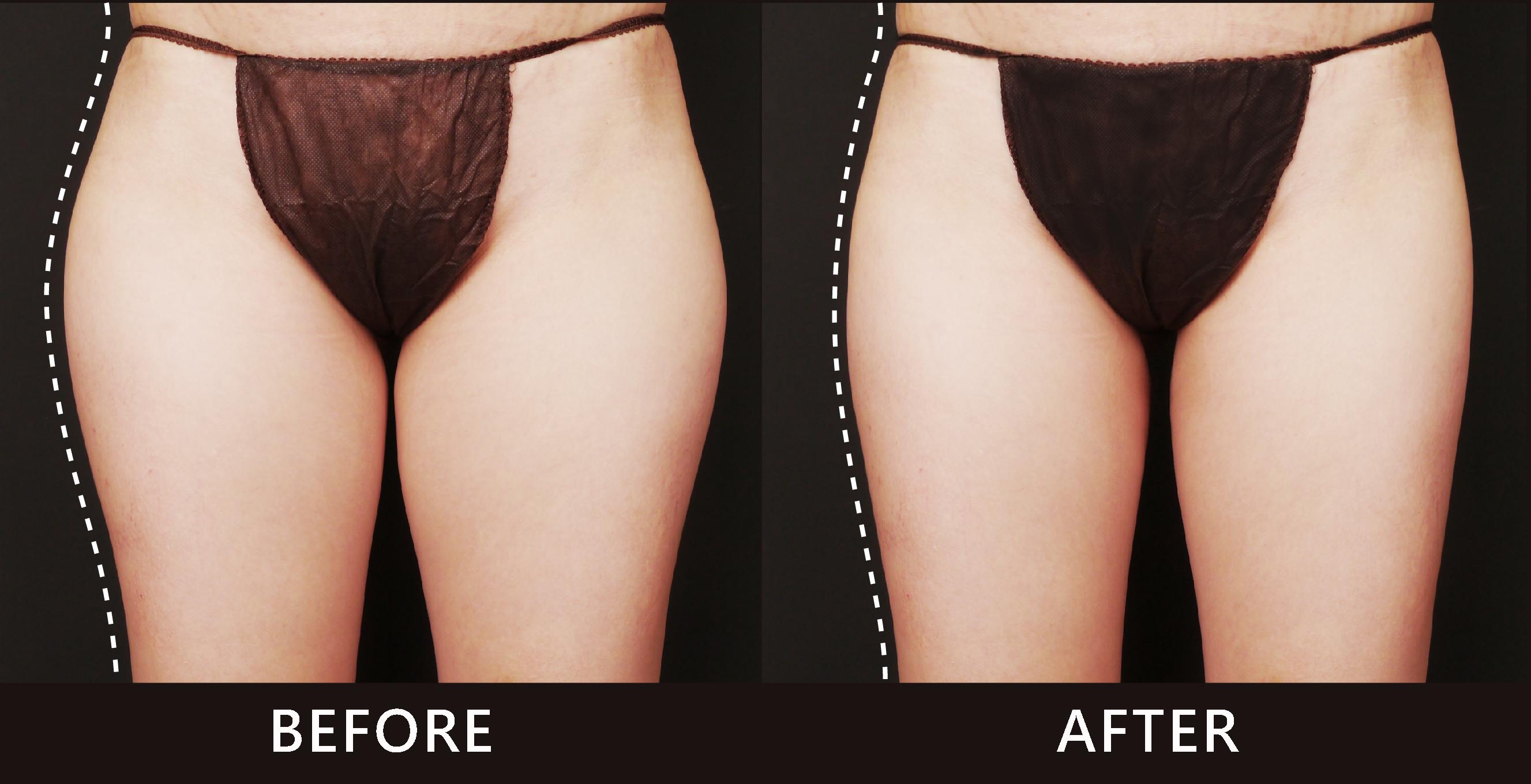 久坐的上班族大腿外側線條凸出。選擇酷塑冷凍減脂雕塑了大腿外側曲線,讓全身比例變得更好。(效果因個案而異)