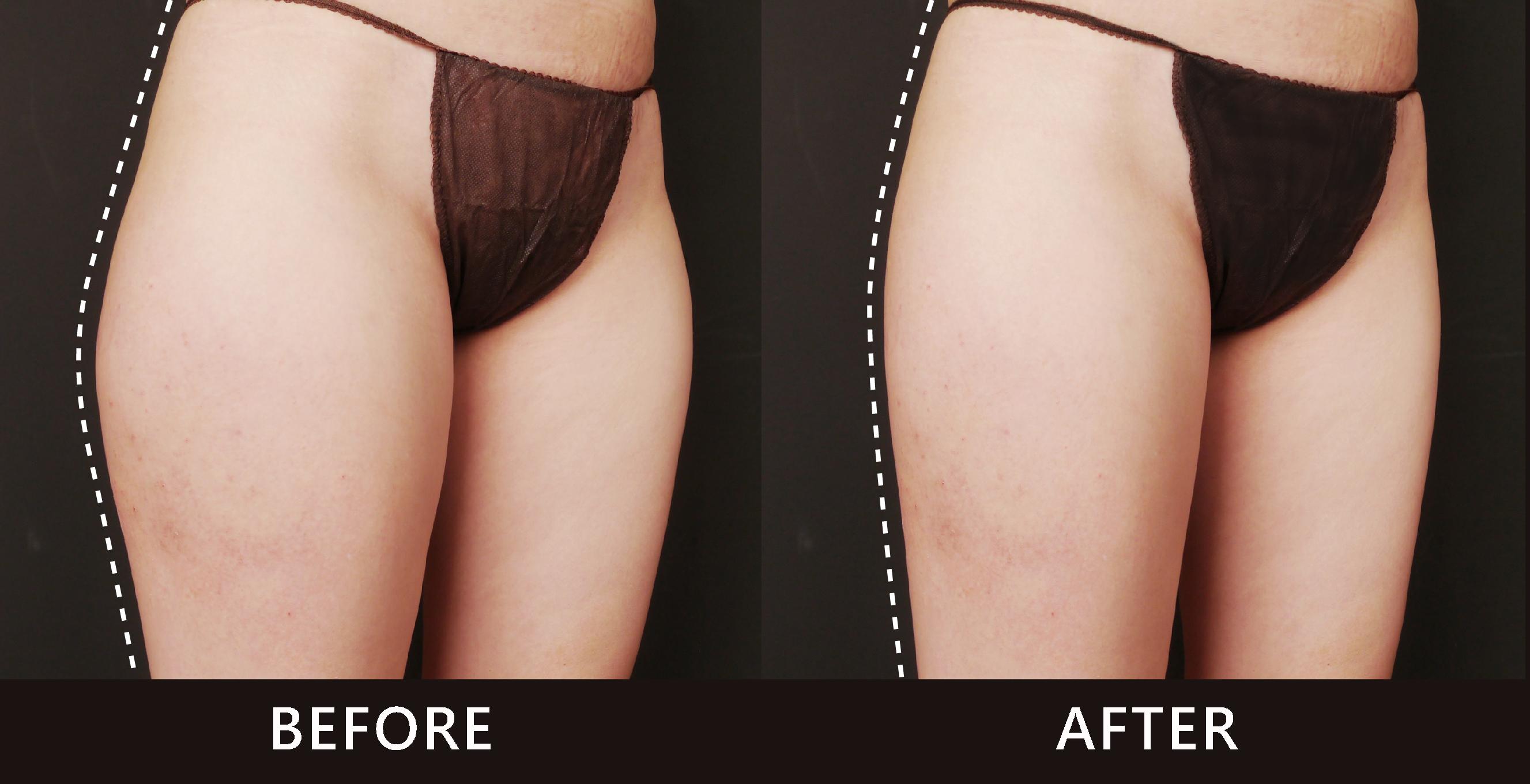大腿外側線條因冷凍減脂療效進而修飾了,外側曲線,變得直順。(效果因個案而異)