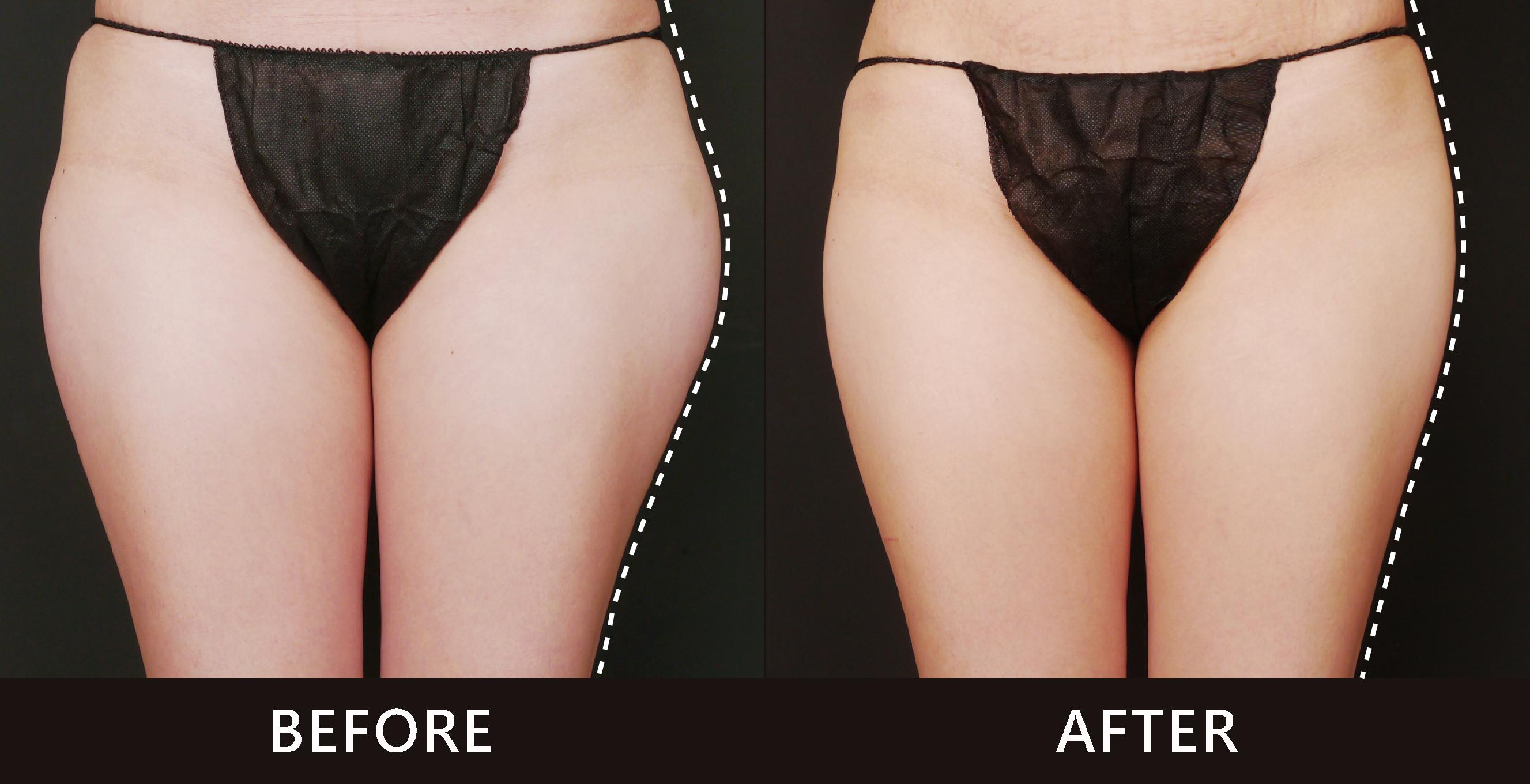 大腿兩側脂肪囤積明顯。透過低溫冷凍減脂雕塑了大腿外側曲線,變得直順。(效果因個案而異)