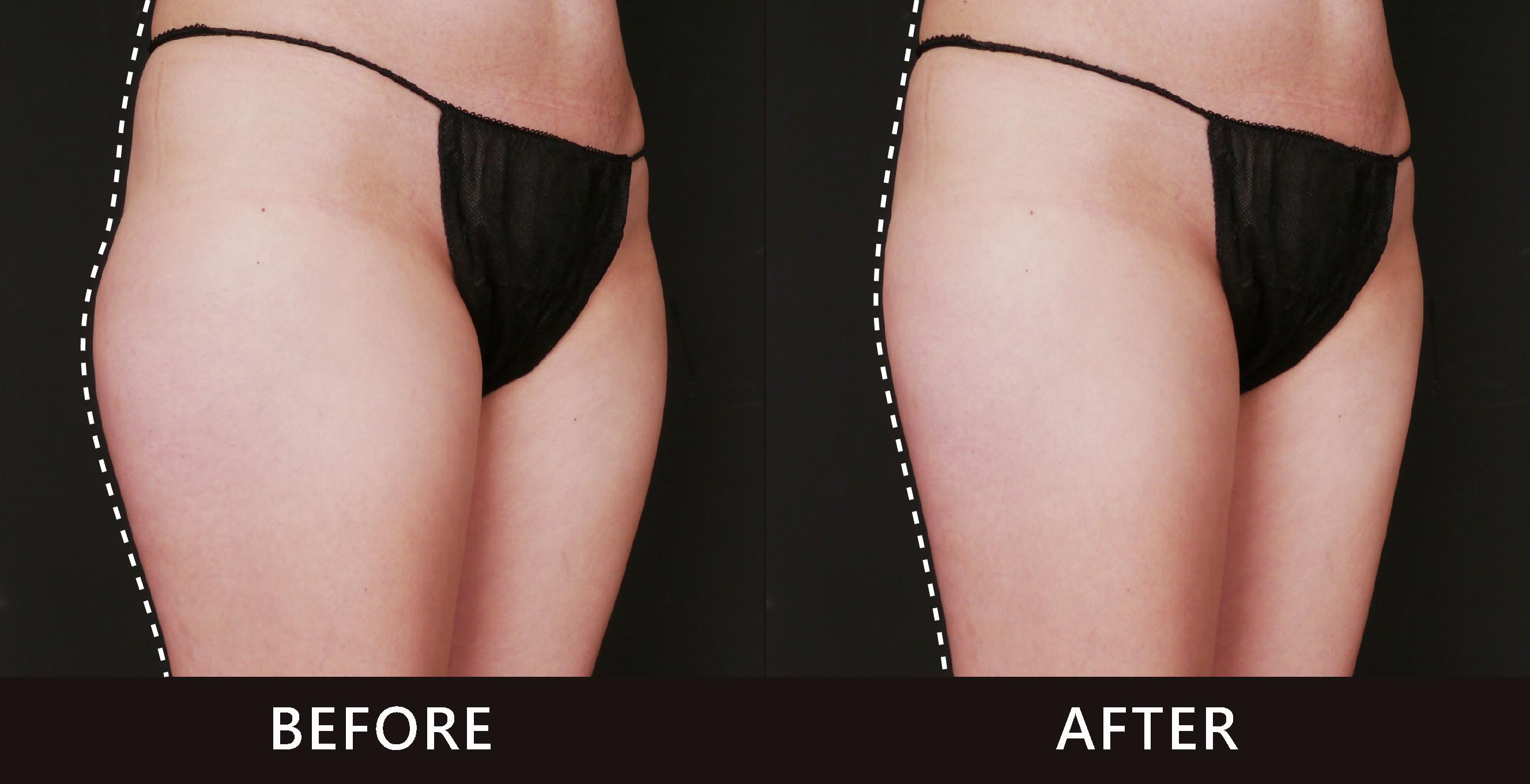 療程後,大腿外側線條變直了,褲子直接小一號(效果因個案而異)