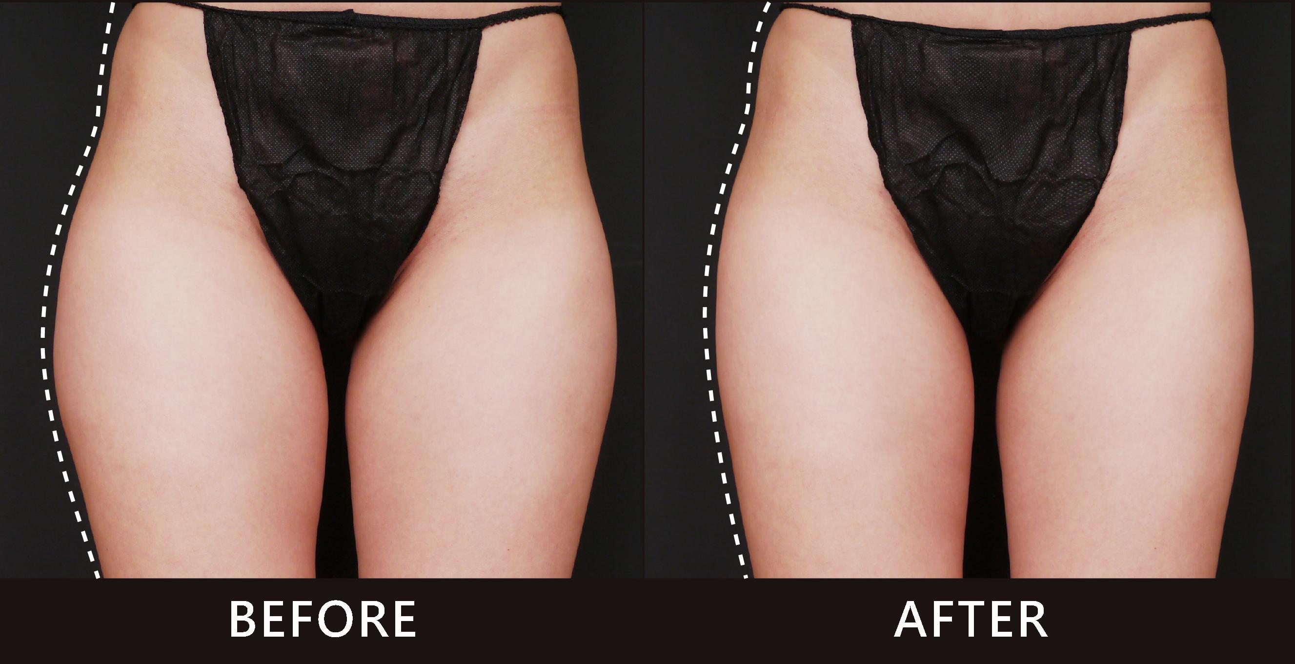 大腿馬鞍外側脂肪突出遠大於髖骨,讓側面大腿線條怪異彎曲。在選擇CoolSculpting冷卻減脂雕塑了大腿外側曲線,變得直順。(效果因個案而異)