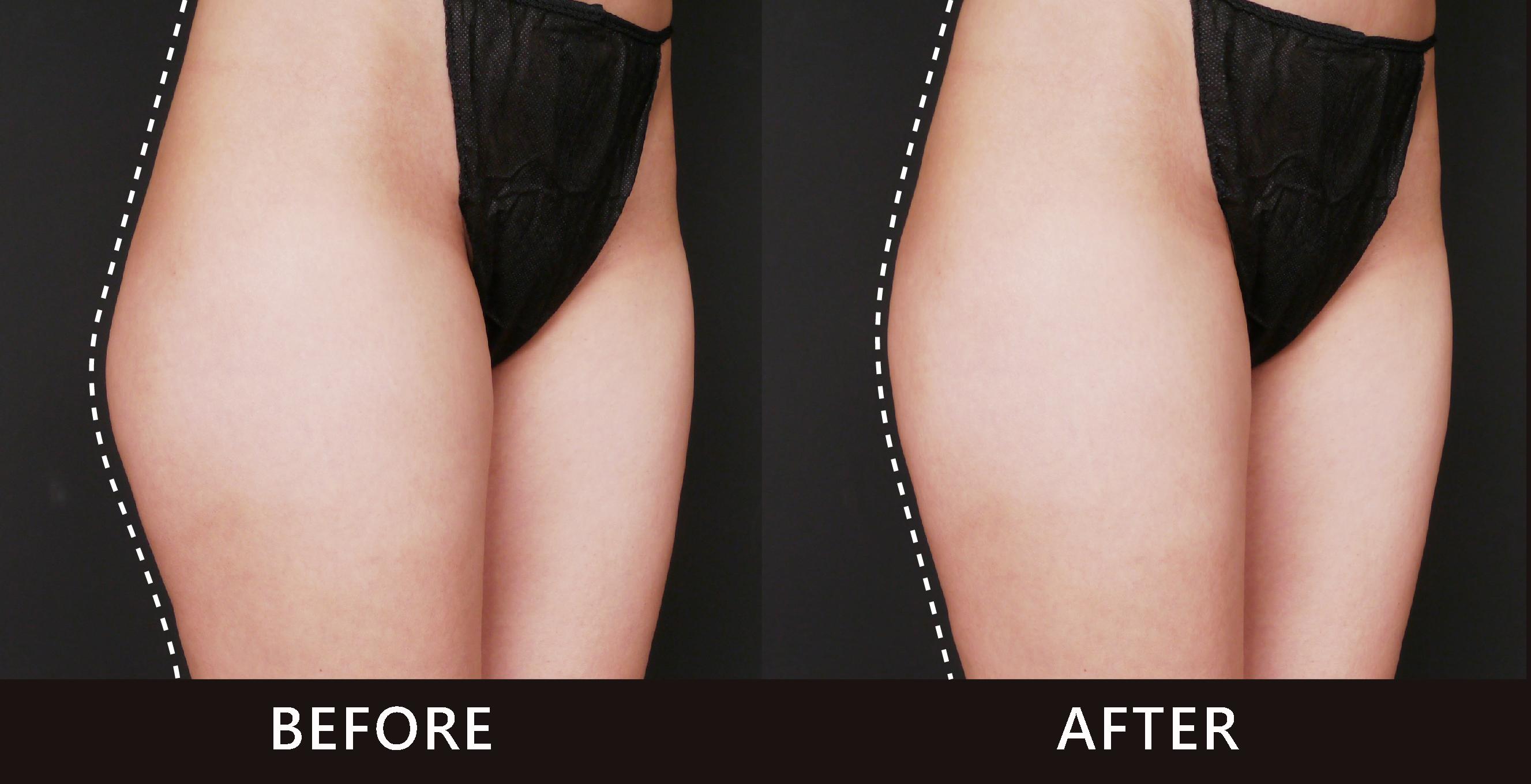 腿外側線條修飾了,不再有突兀的贅肉。(效果因個案而異)