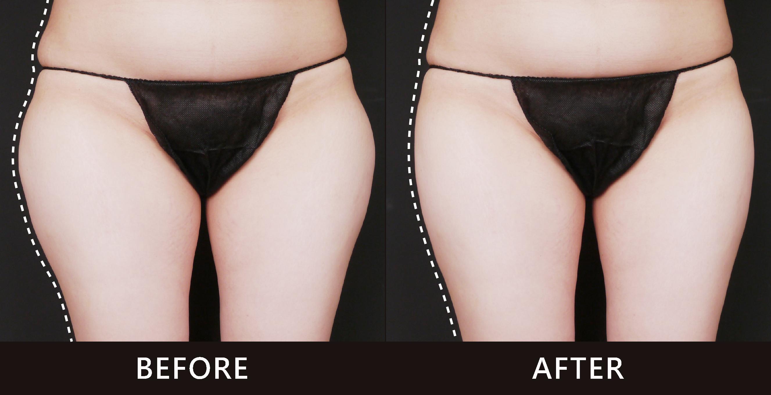 女性朋友最討厭腰臀側面脂肪凸起,讓全身比例不佳。在經由酷塑冷凍減脂的雕塑下了,大腿外側曲線柔順,整體感覺變得協調。