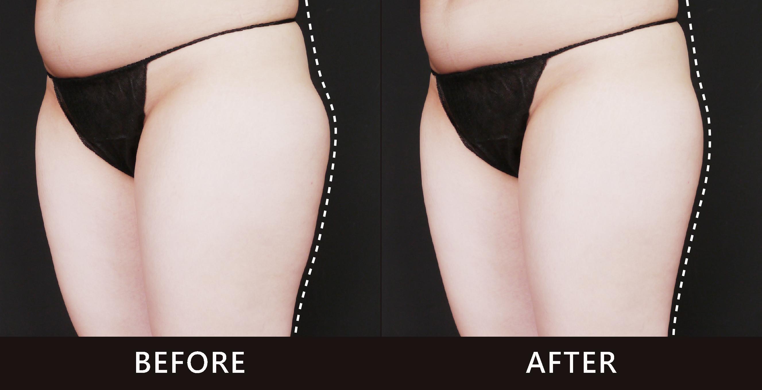 大腿外側的肥胖最難處理,多一塊肉會讓整體視覺比例不好看,有五五身的錯覺。經由酷爾塑平冷凍減脂的雕塑下,線條平順更自然。(效果因個案而異)