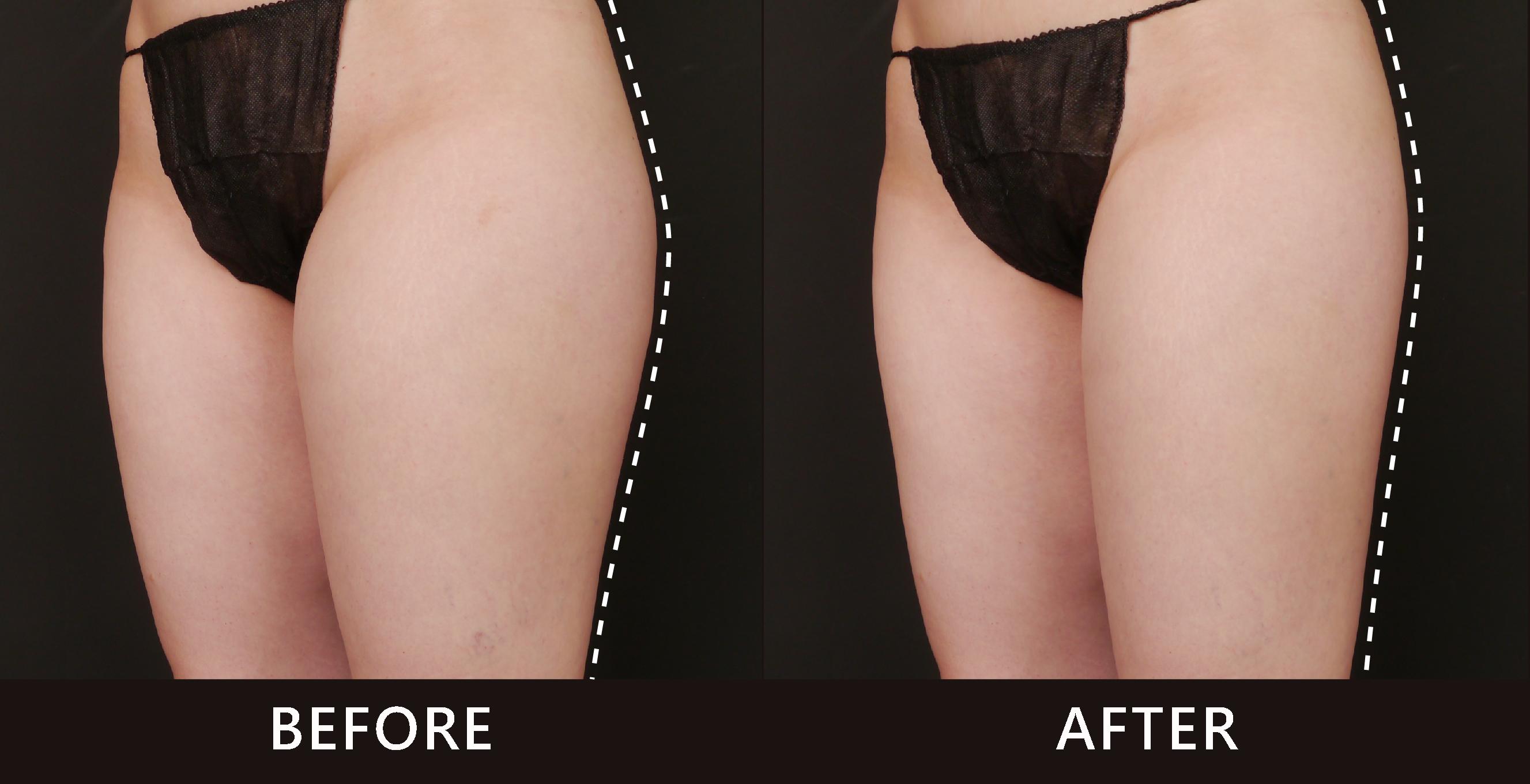 原本突兀的臀部線條,術後變的和緩平直。整體感覺協調美麗多了。(效果因個案而異)