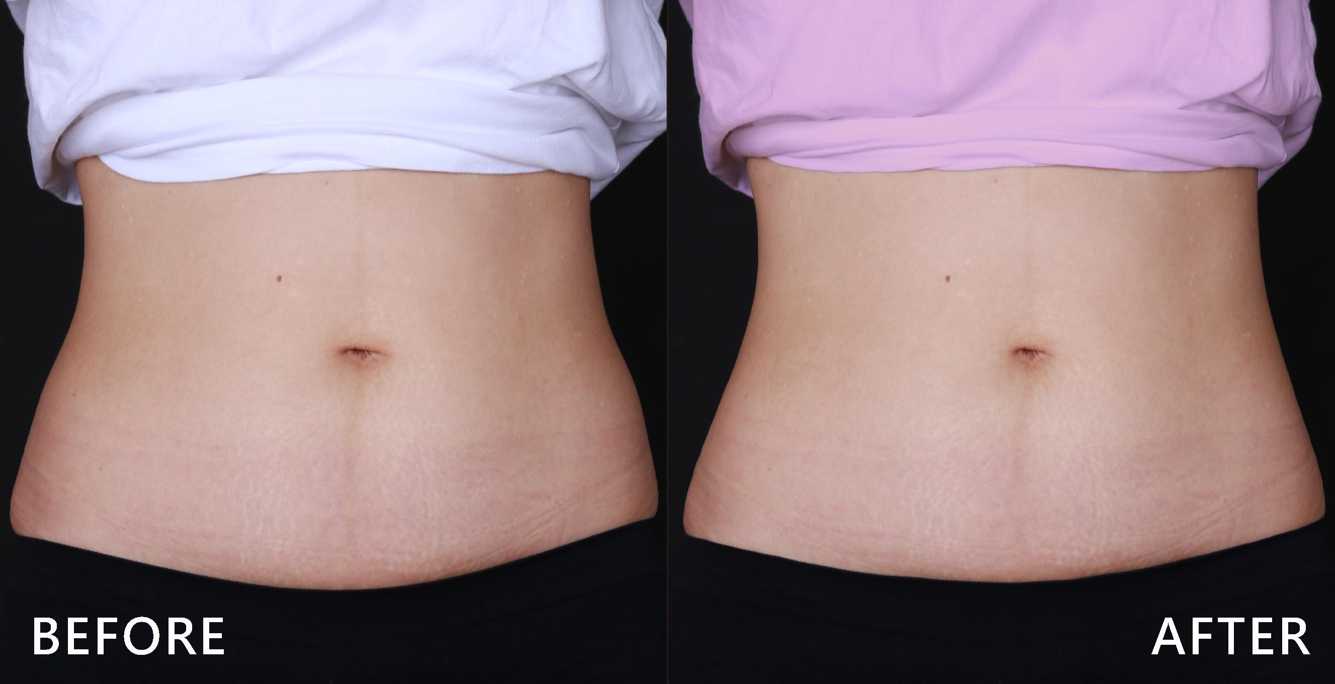 腰臀曲線不直順,略微馬鞍肉,經由酷塑冷凍減脂治療之下後腰線變明顯了,性感加分!(效果因個案而異)