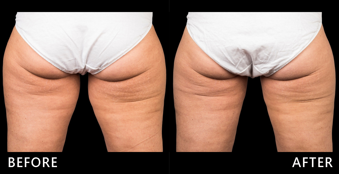 大腿內外側贅肉堆積,選擇酷爾塑平冷凍減脂治療後大腿內外側線條變直,大腿也感覺變緊實了!(效果因個案而異)