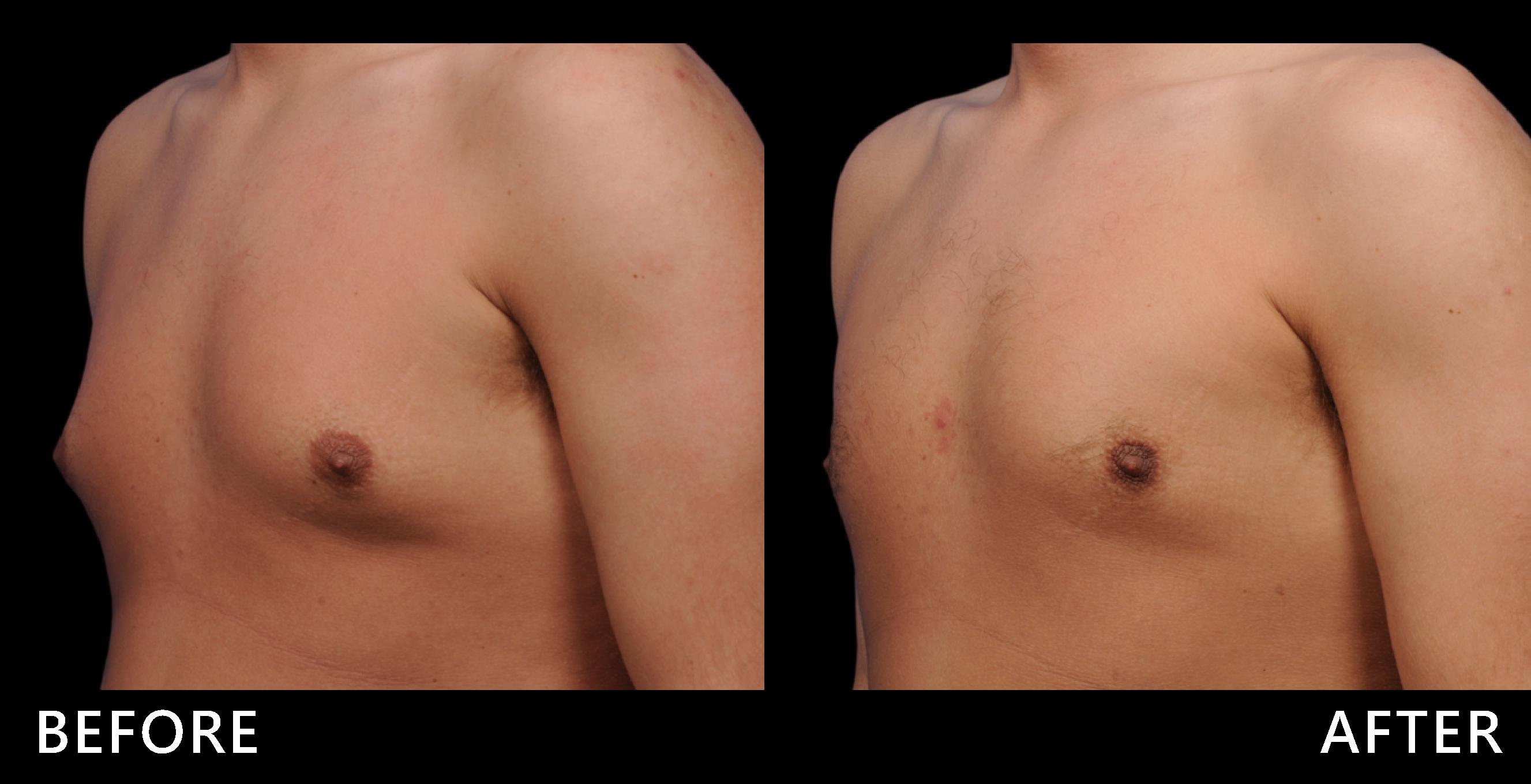 胸部脂肪明顯變少,男性肌肉感增加了!(效果因個案而異)