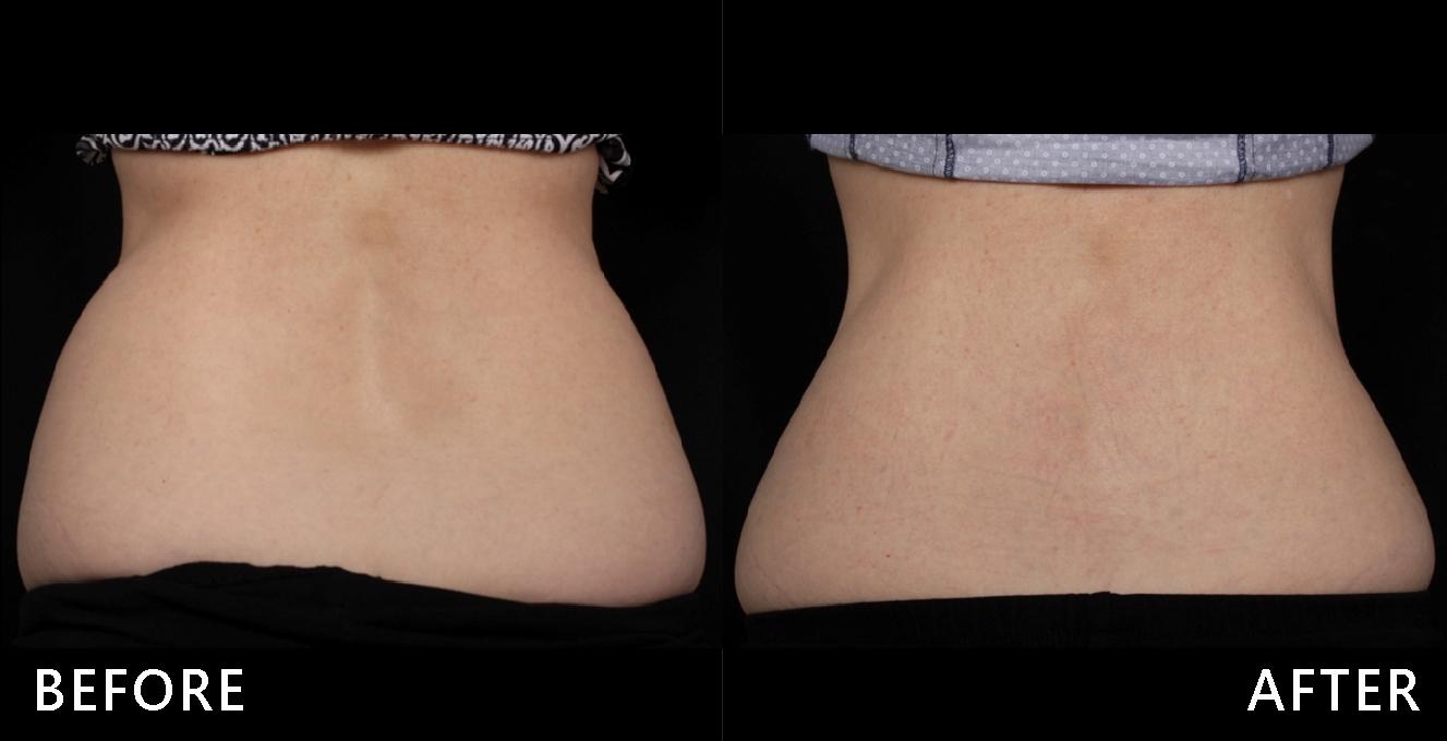 水瓶型腰線不美觀經由酷塑冷凍減脂的治療後,腰部明顯變細,腰臀曲線優美,細腰寬臀、魅力加分!(效果因個案而異)