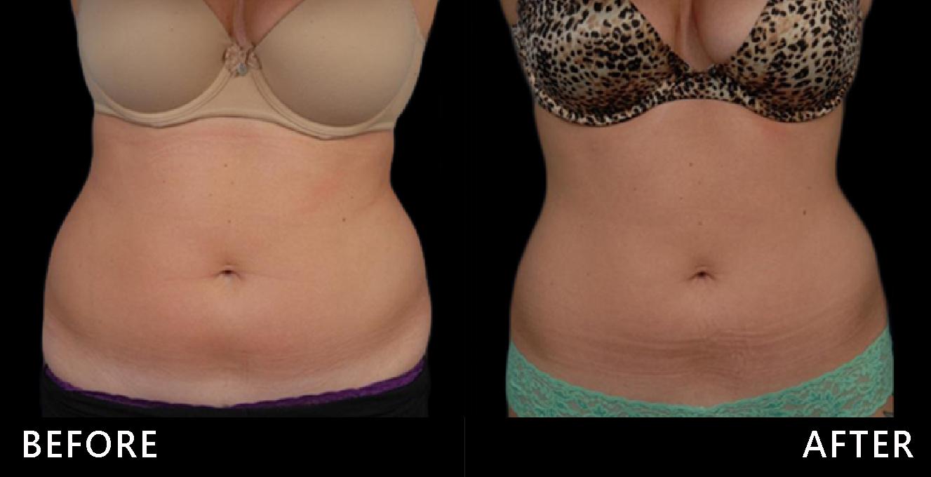 中年體型基本款、腰臀肥滿,視覺年齡像50歲。低溫冷凍減脂治療後,重現腰線,視覺回春!(效果因個案而異)