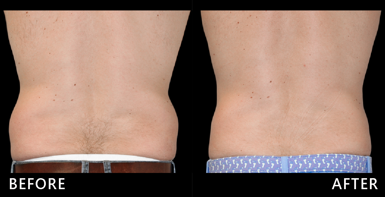 男性腰間贅肉也很影響觀瞻!在酷塑冷凍減脂的低溫雕塑下,腰線變直,倒三角體型再現,腰線明顯修飾了。(效果因個案而異)
