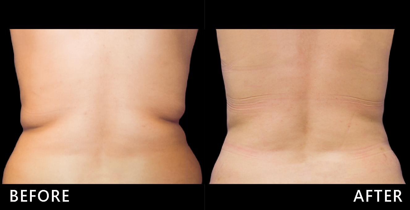 腰部脂肪堆積、紋路明顯真討厭!在冷凍減脂治療後,局部脂肪堆積消失,腰線平順,整體感覺變瘦很多。(效果因個案而異)