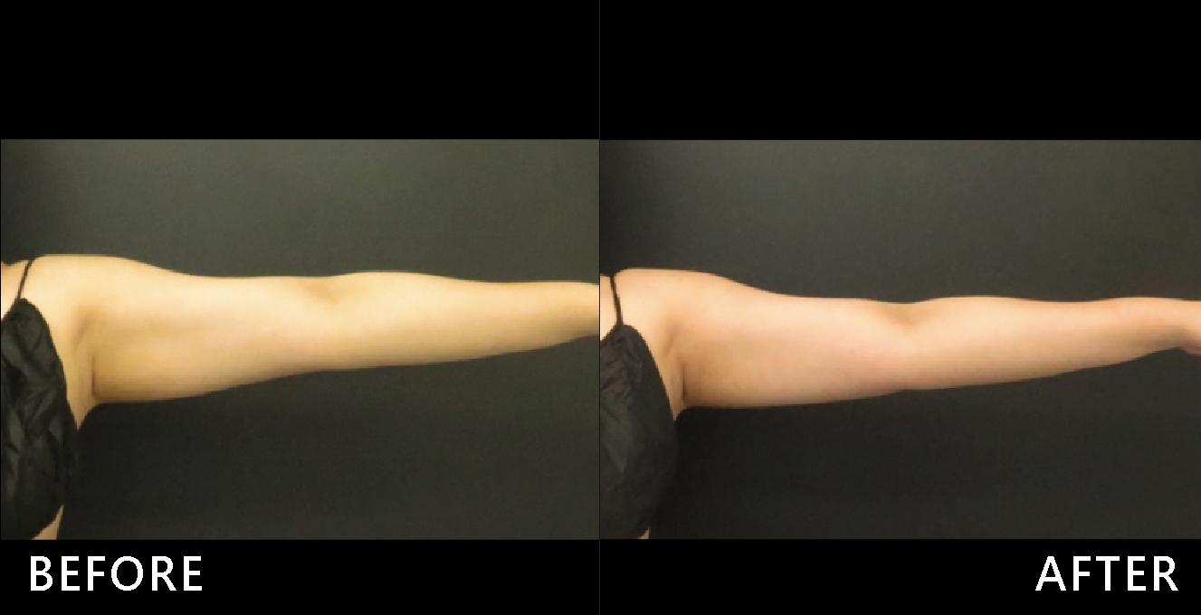 蝴蝶袖略為下垂,腰部腹部脂肪堆積,藉由酷爾塑平冷凍減脂的低溫冷卻脂肪細胞效果,重拾緊實手臂。(效果因個案而異)
