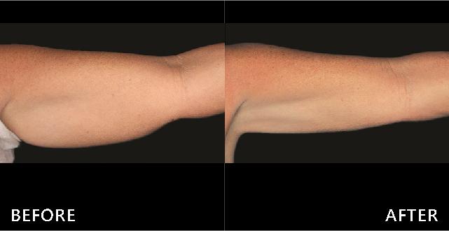 掰掰肉在經過酷塑冷凍減脂的治療後明顯變小,上臂線條變美。(效果因個案而異)