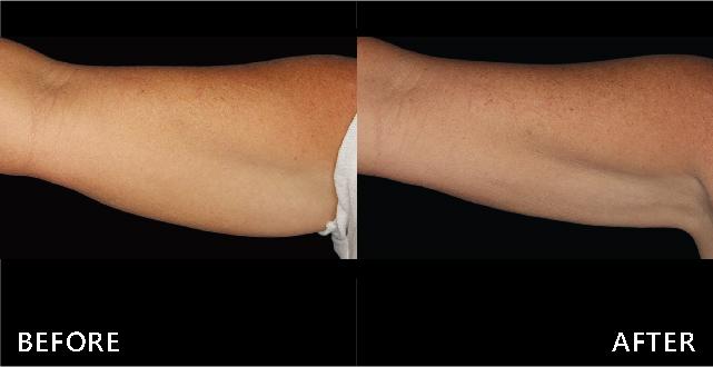 難以抵擋的地心引力-蝴蝶袖下垂,透過冷卻減脂療程後明顯改善,上臂變直了。(效果因個案而異)