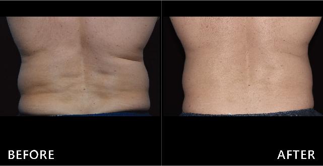 腰背贅肉堆積、橫紋路明顯,在酷爾塑平冷凍減脂的幫助下,背部變平坦,紋路撫平了,腰圍變細了。(效果因個案而異)