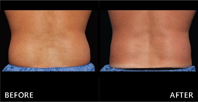 側腰部脂肪成圓弧狀,經由冷凍減脂的雕塑後腰部線條平順,肥滿感消失。(效果因個案而異)
